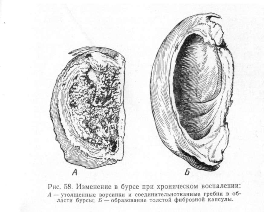 Слизистая и синовиальная сумка сустава лошади сан6атории для суставов в венгрии