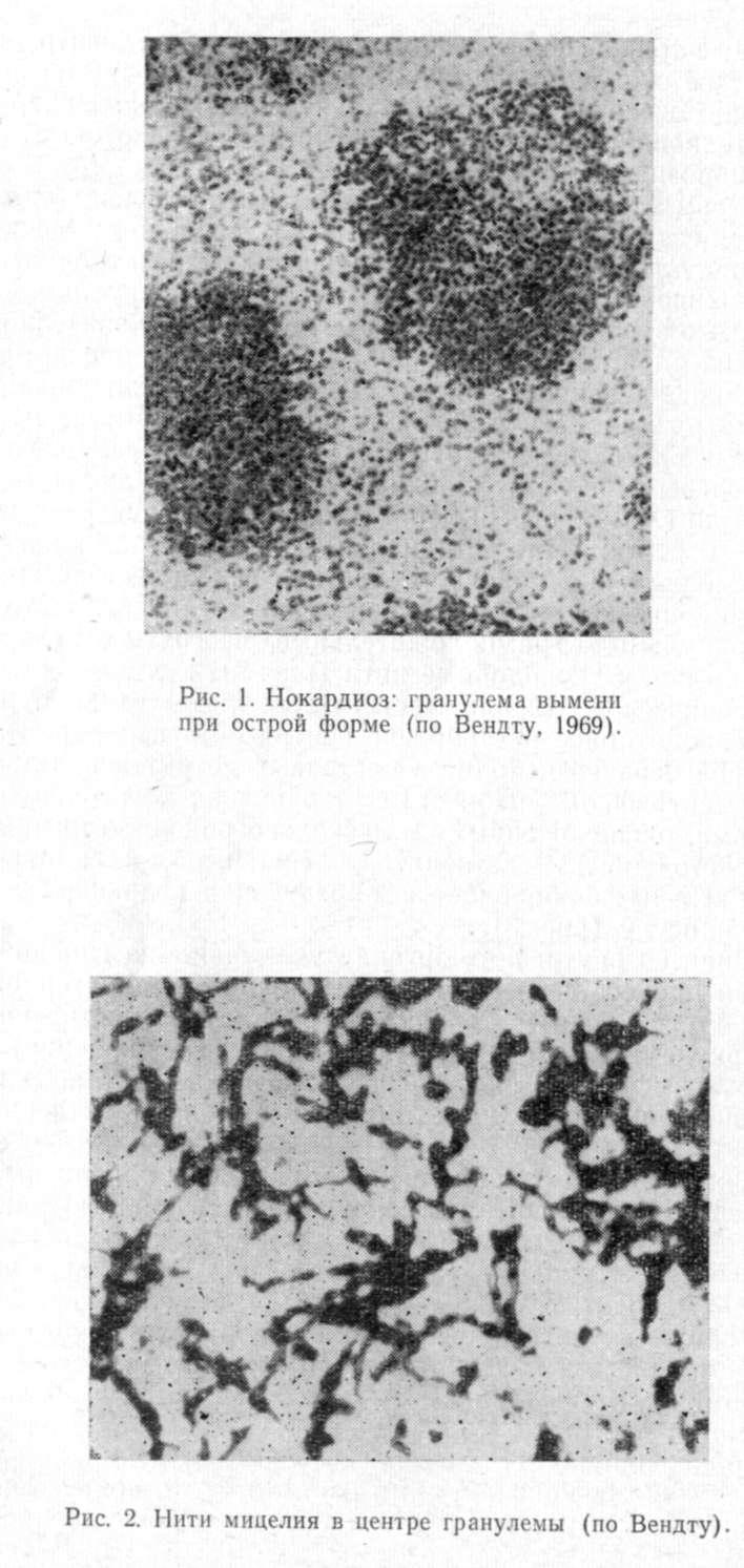 Нокардиоз