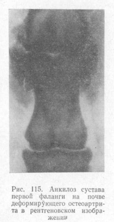 анкилоз сустава первой фаланги на почве деформирующего остеоартрита