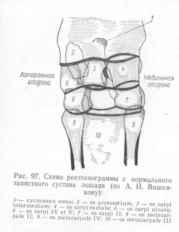схема рентгенограммы